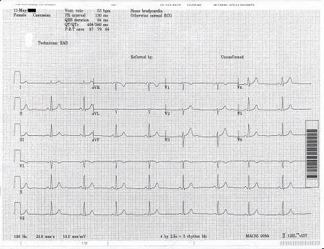 EKG 2014 blocked